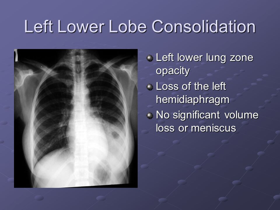 Left Lower Lobe Consolidation