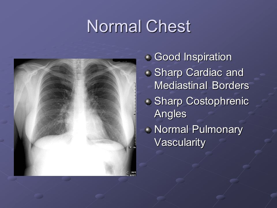 Normal Chest Good Inspiration Sharp Cardiac and Mediastinal Borders