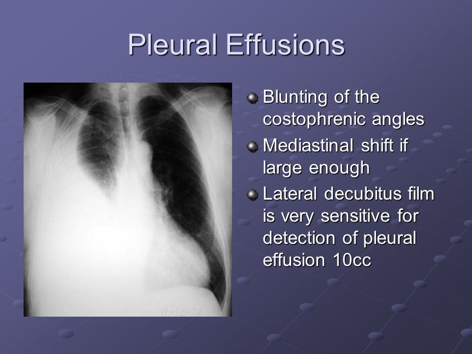 Pleural Effusions Blunting of the costophrenic angles