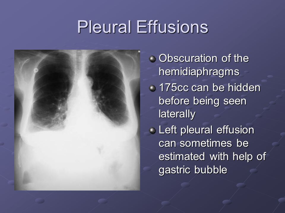 Pleural Effusions Obscuration of the hemidiaphragms