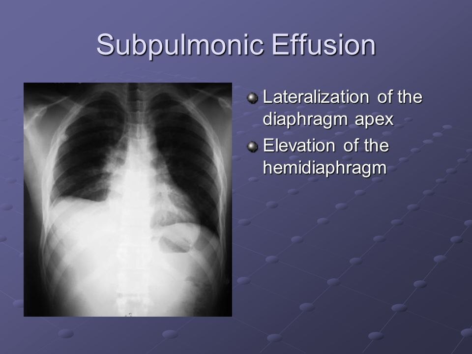 Subpulmonic Effusion Lateralization of the diaphragm apex