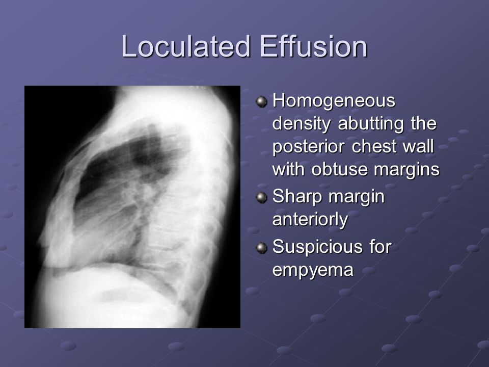 Loculated Effusion Homogeneous density abutting the posterior chest wall with obtuse margins. Sharp margin anteriorly.