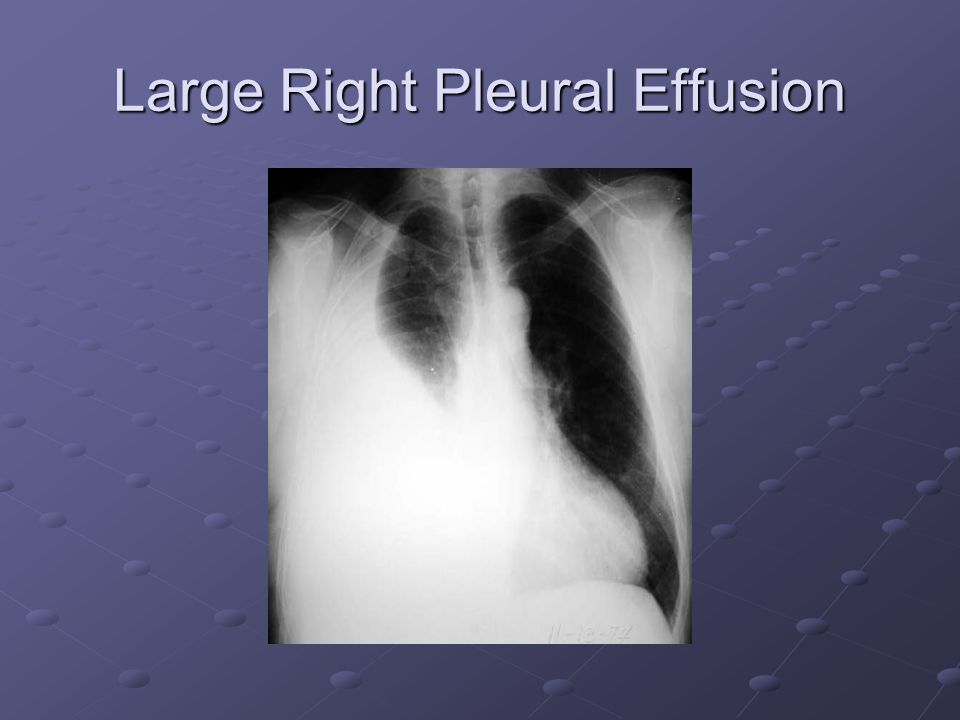Large Right Pleural Effusion