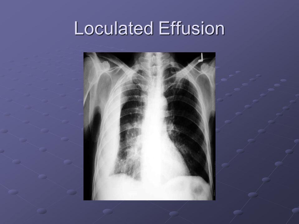 Loculated Effusion