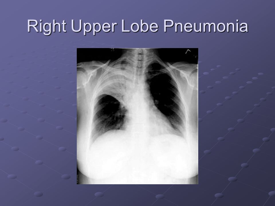 Right Upper Lobe Pneumonia