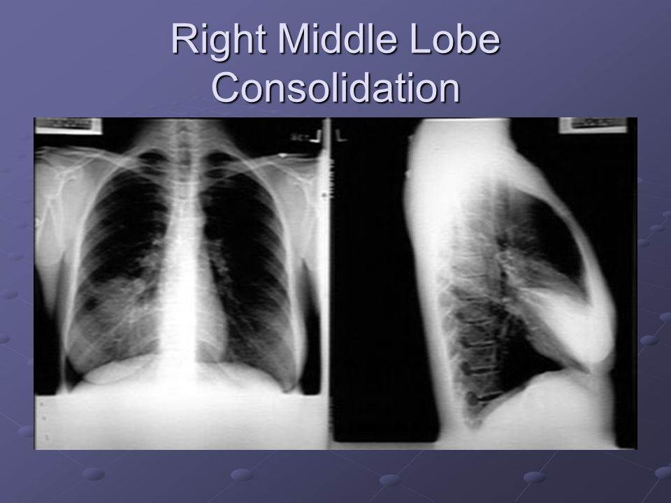 Right Middle Lobe Consolidation
