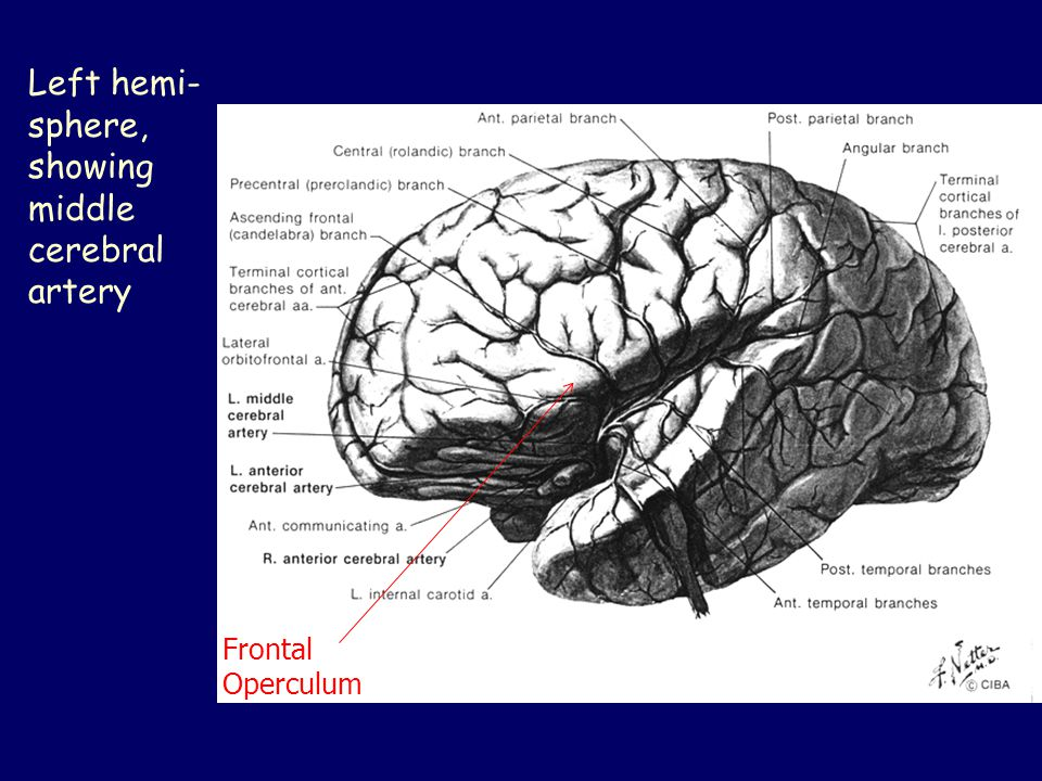 Left hemi-sphere, showing middle cerebral artery