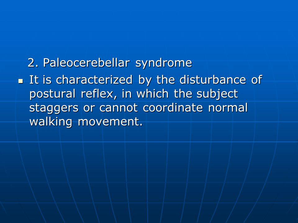 2. Paleocerebellar syndrome