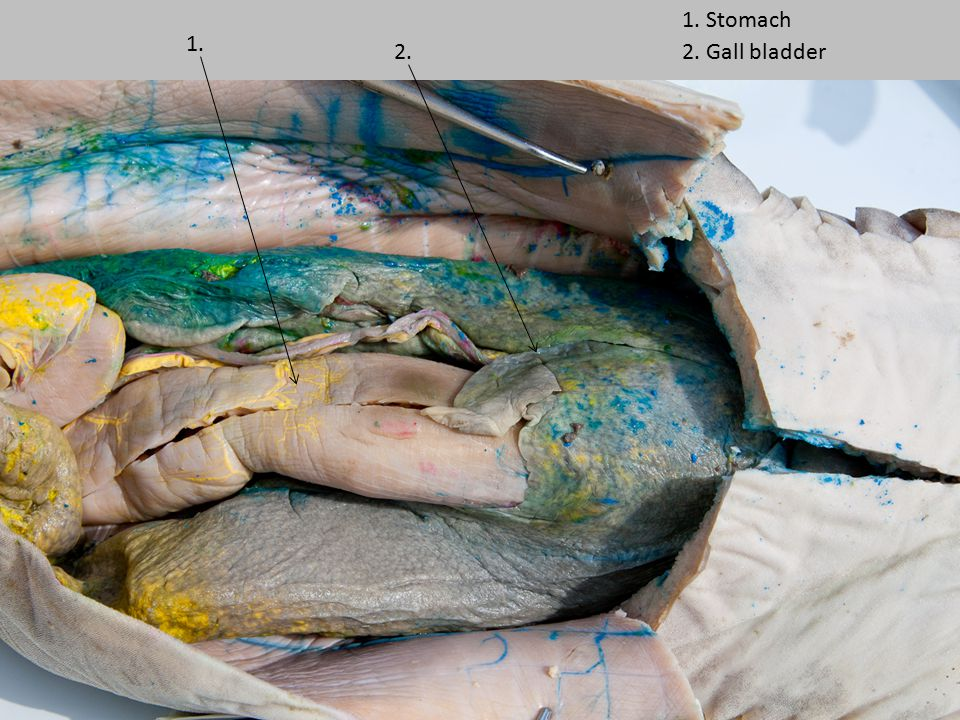 1. Stomach 1. 2. 2. Gall bladder