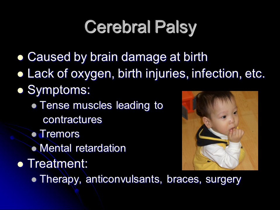 Cerebral Palsy Caused by brain damage at birth