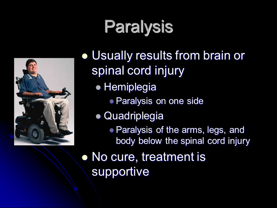 Paralysis Usually results from brain or spinal cord injury
