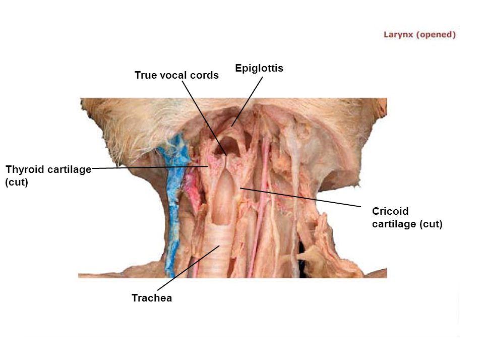 Epiglottis True vocal cords Thyroid cartilage (cut) Cricoid cartilage (cut) Trachea