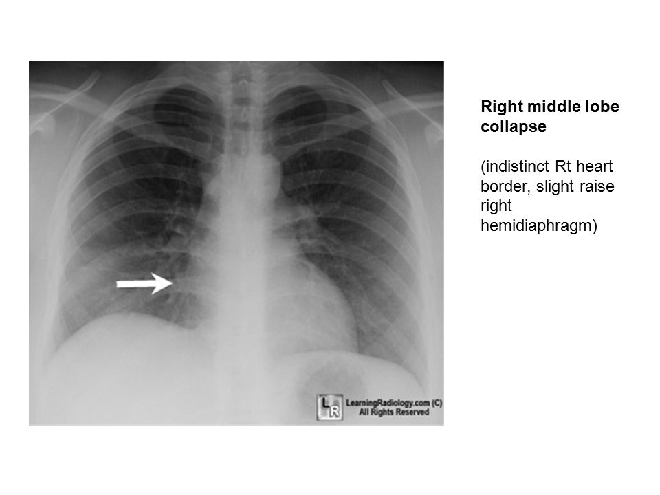 Right middle lobe collapse