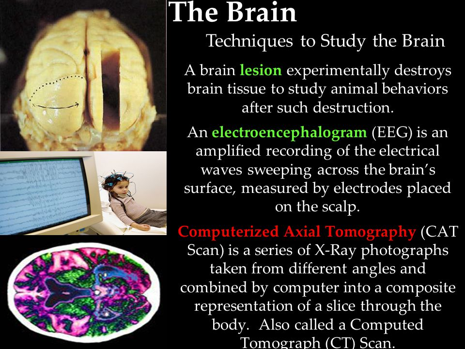 Techniques to Study the Brain