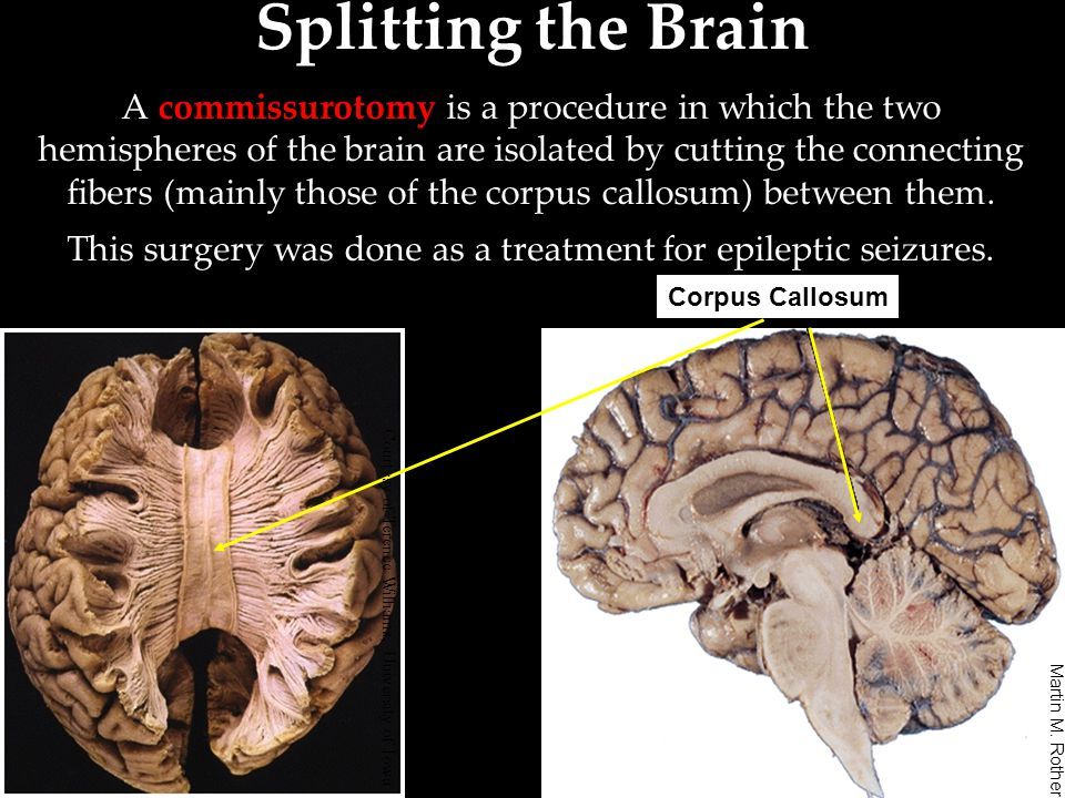 This surgery was done as a treatment for epileptic seizures.