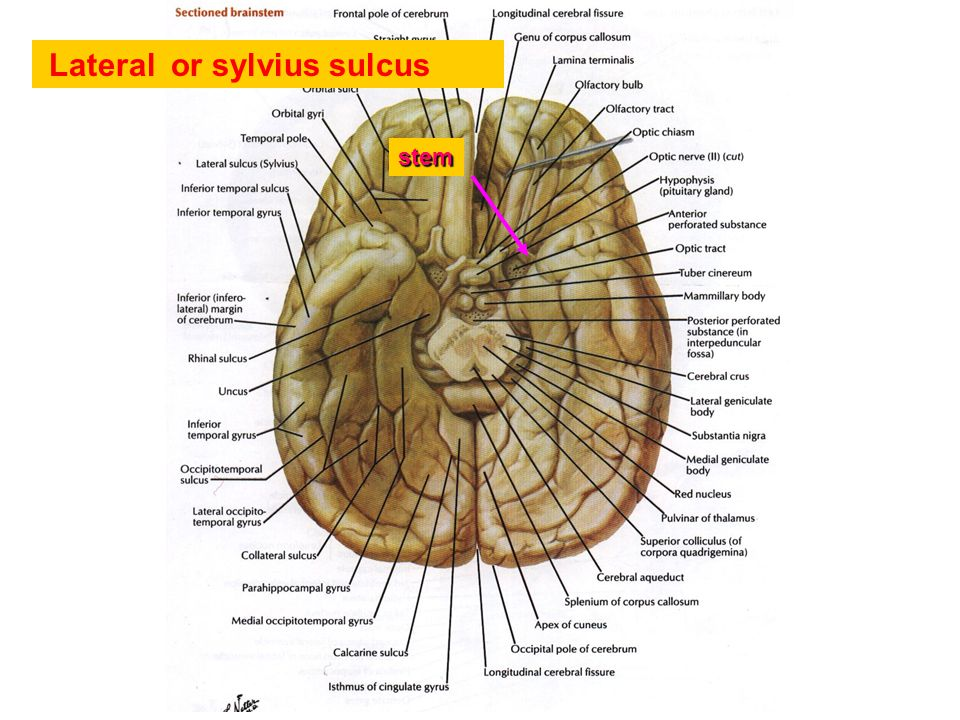 Lateral or sylvius sulcus