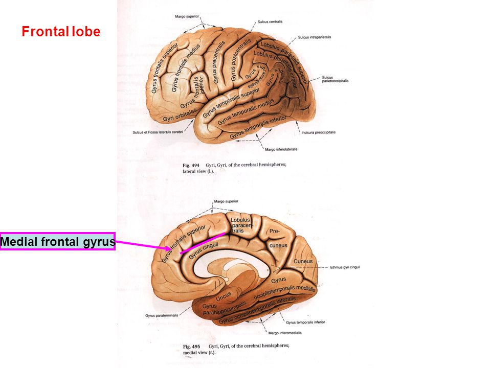 Frontal lobe Medial frontal gyrus