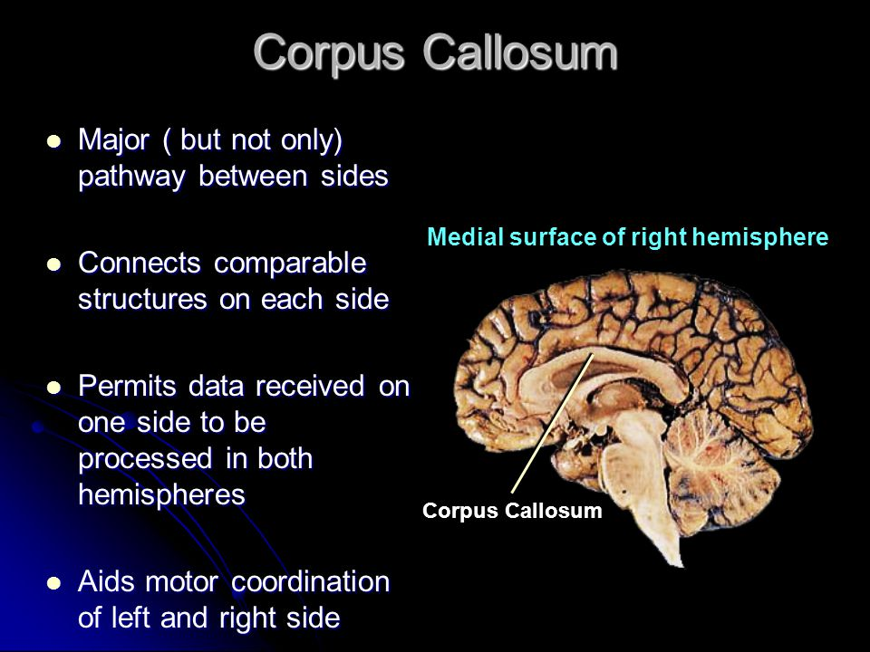 Corpus Callosum Major ( but not only) pathway between sides