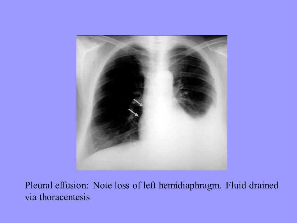 Pleural effusion: Note loss of left hemidiaphragm