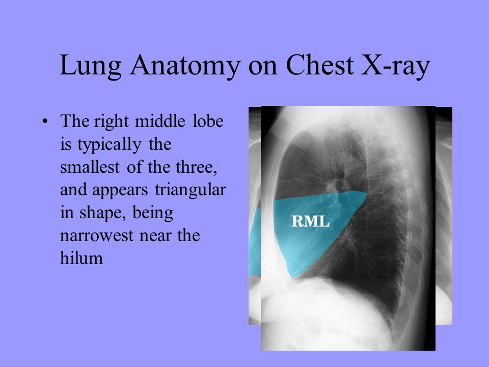 Lung Anatomy on Chest X-ray