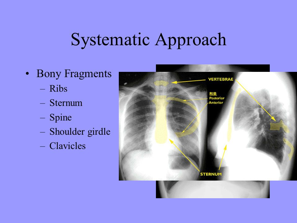 Systematic Approach Bony Fragments Ribs Sternum Spine Shoulder girdle