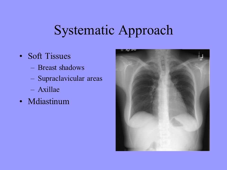 Systematic Approach Soft Tissues Mdiastinum Breast shadows