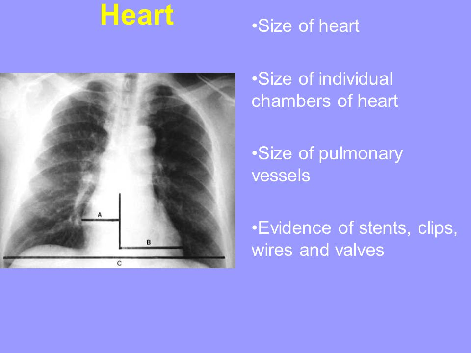 Heart Size of heart Size of individual chambers of heart