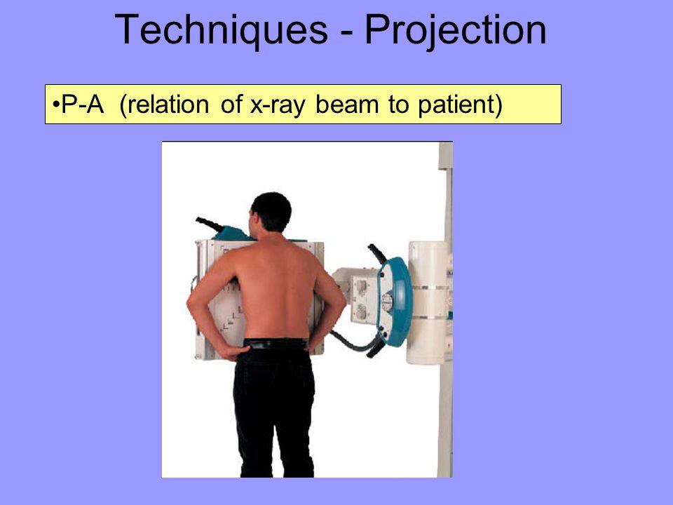 Techniques - Projection