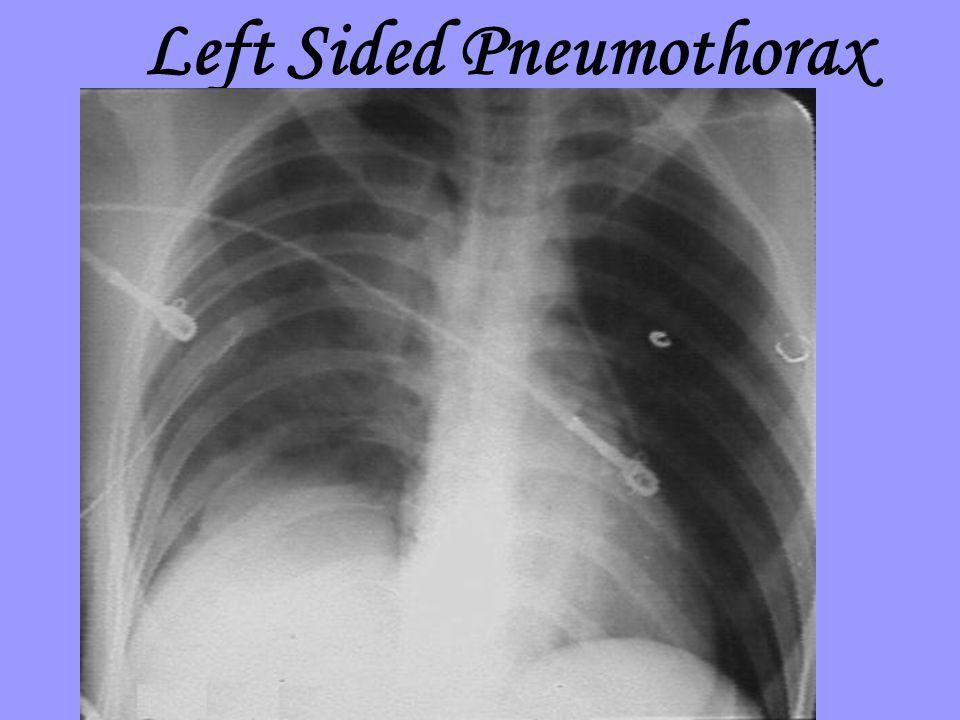 Left Sided Pneumothorax