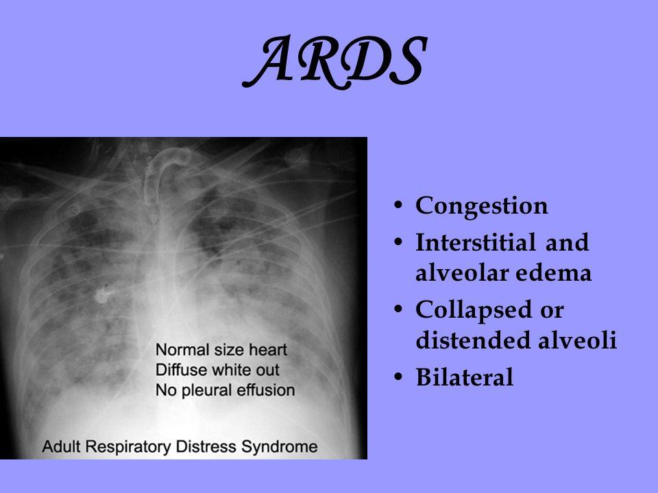 ARDS Congestion Interstitial and alveolar edema