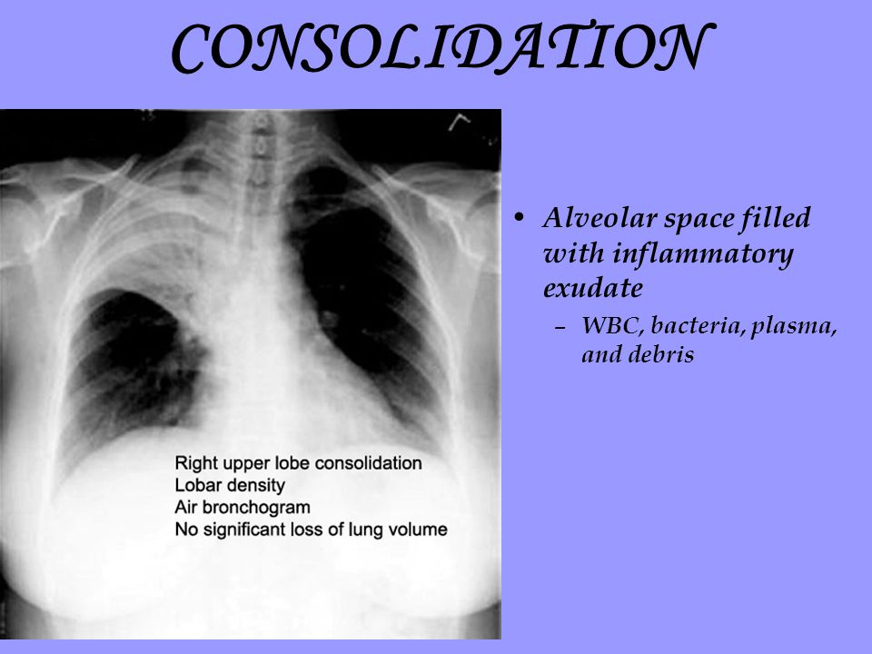 CONSOLIDATION Alveolar space filled with inflammatory exudate