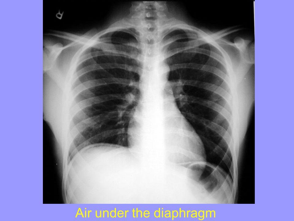 Air under the diaphragm