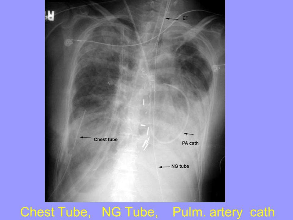 Chest Tube, NG Tube, Pulm. artery cath