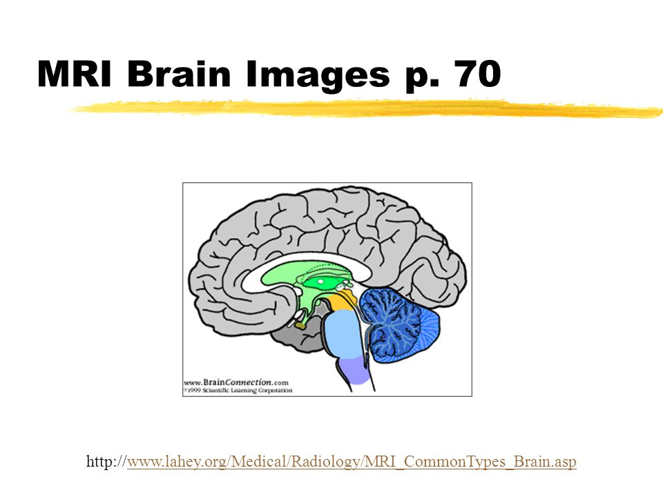 MRI Brain Images p. 70 http://www.lahey.org/Medical/Radiology/MRI_CommonTypes_Brain.asp