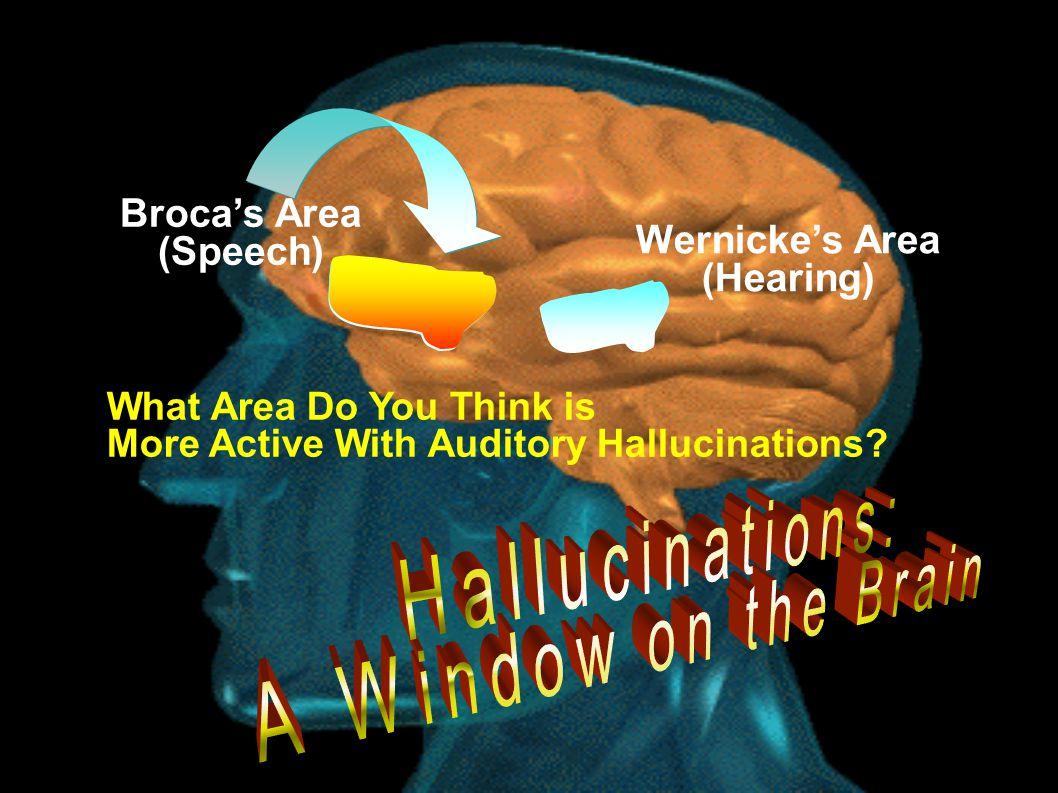 Hallucinations: A Window on the Brain Broca's Area (Speech)