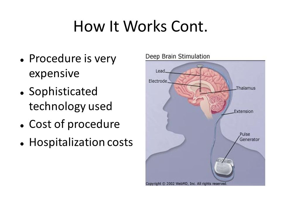 How It Works Cont. Procedure is very expensive