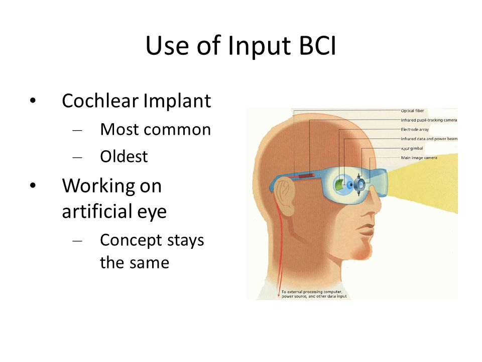 Use of Input BCI Cochlear Implant Working on artificial eye