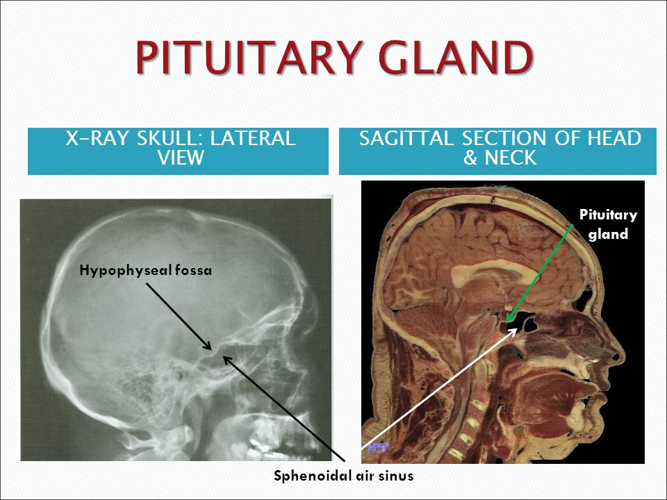 PITUITARY GLAND X-RAY SKULL: LATERAL VIEW