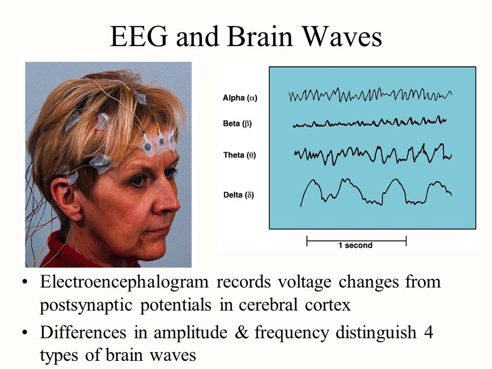 EEG and Brain Waves Electroencephalogram records voltage changes from postsynaptic potentials in cerebral cortex.