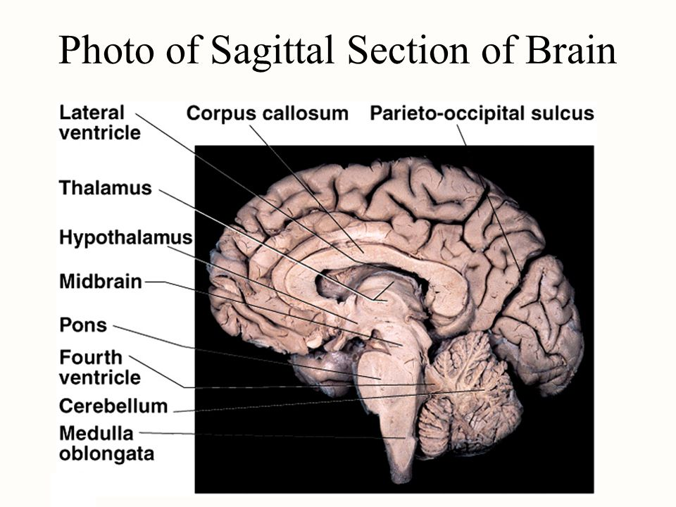 Photo of Sagittal Section of Brain