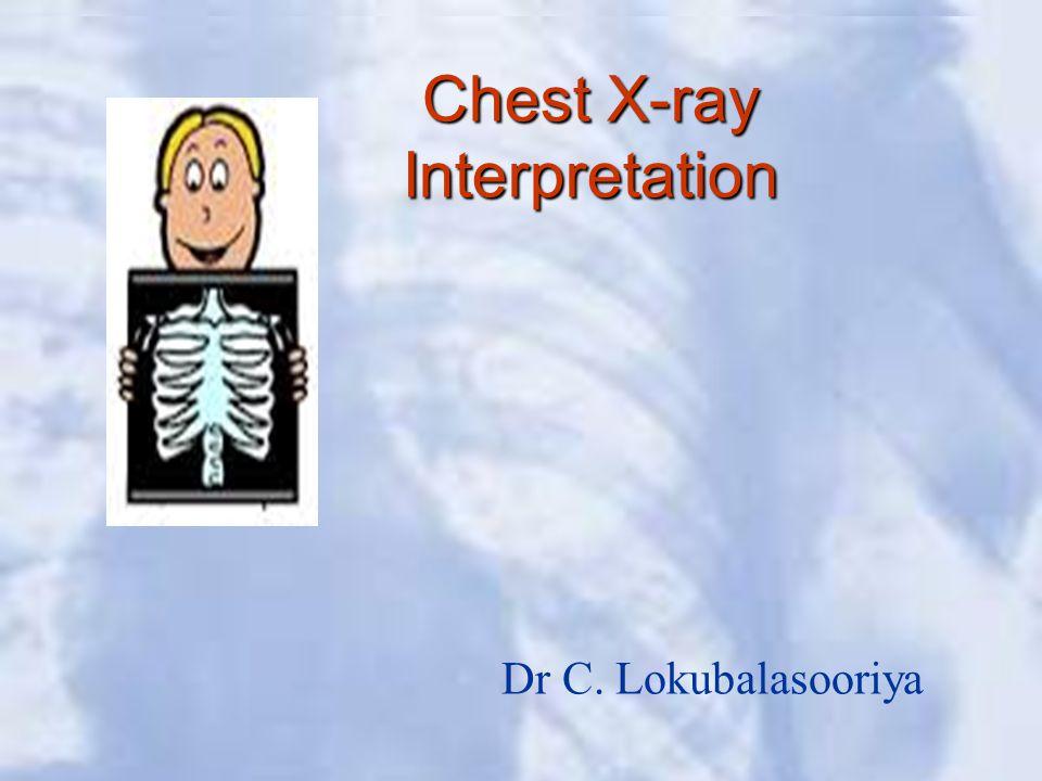 Chest X-ray Interpretation