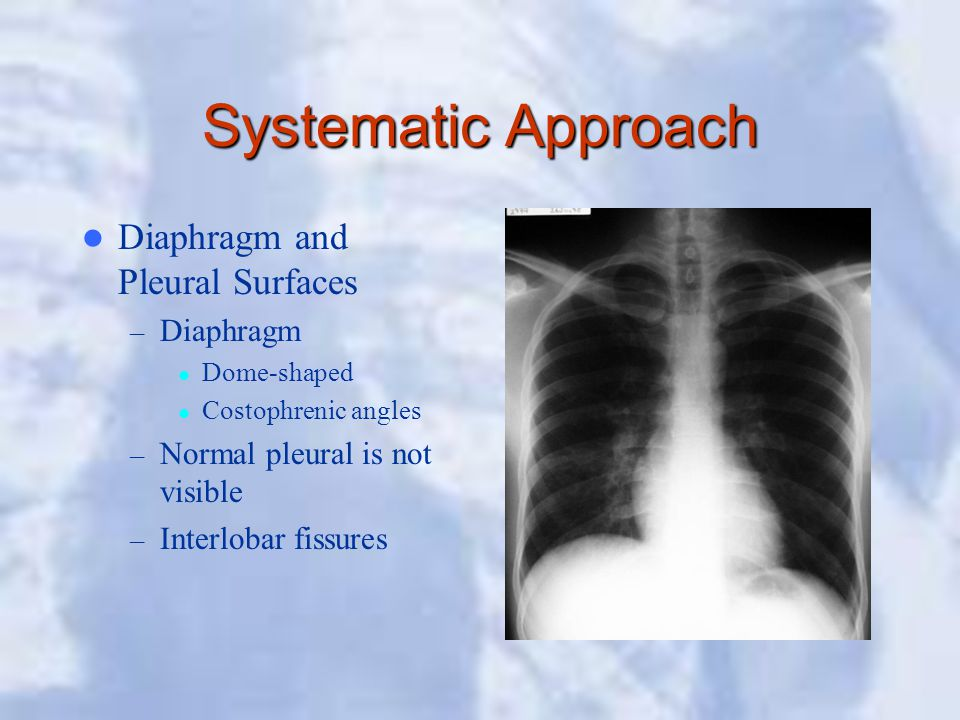 Systematic Approach Diaphragm and Pleural Surfaces Diaphragm