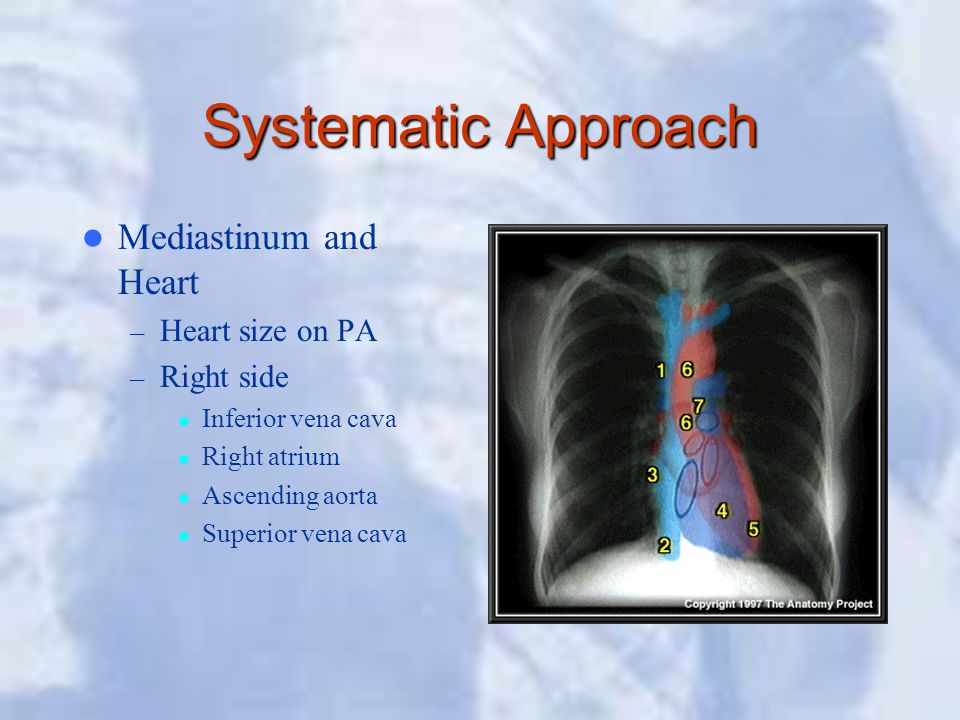 Systematic Approach Mediastinum and Heart Heart size on PA Right side
