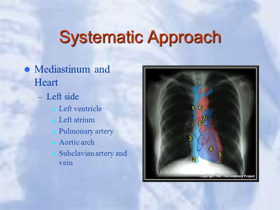 Systematic Approach Mediastinum and Heart Left side Left ventricle