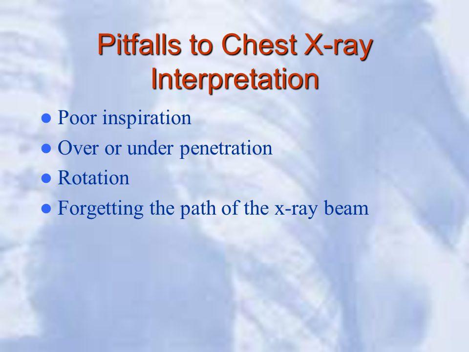 Pitfalls to Chest X-ray Interpretation
