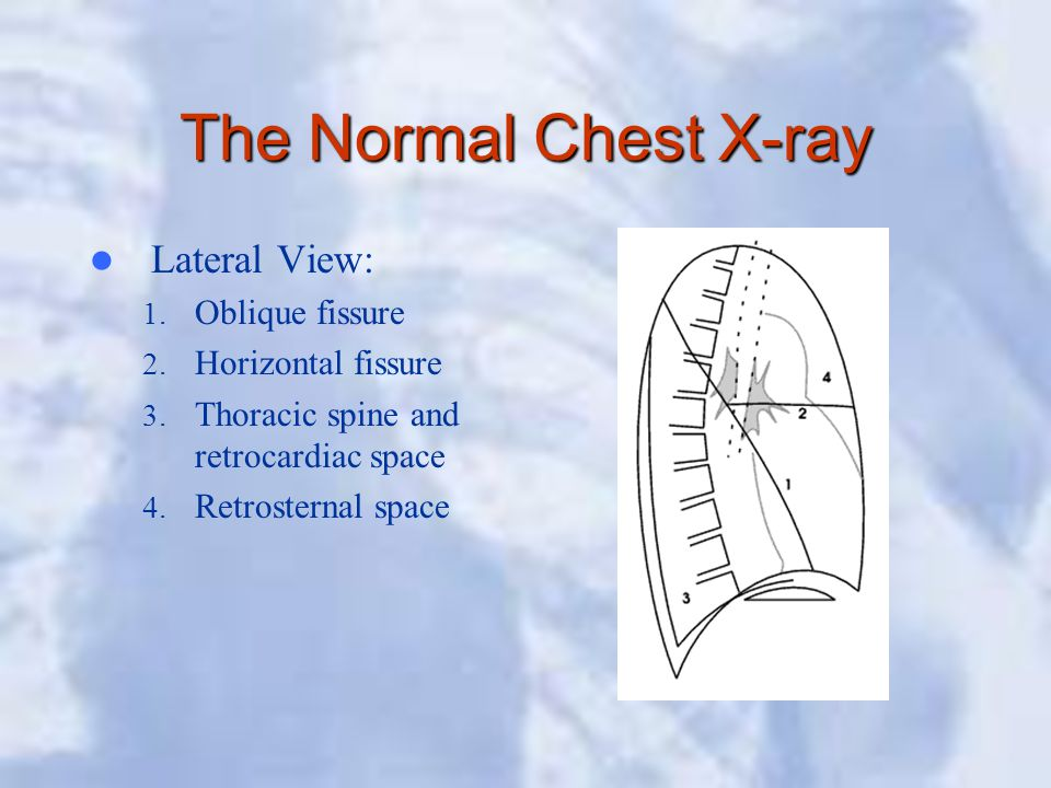 The Normal Chest X-ray Lateral View: Oblique fissure