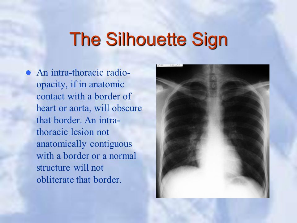 The Silhouette Sign