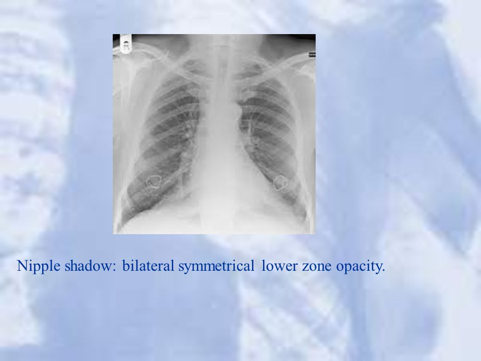 Nipple shadow: bilateral symmetrical lower zone opacity.