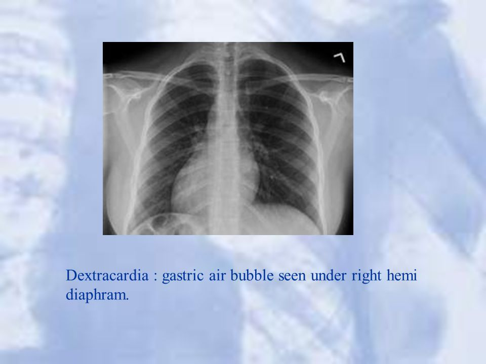 Dextracardia : gastric air bubble seen under right hemi diaphram.