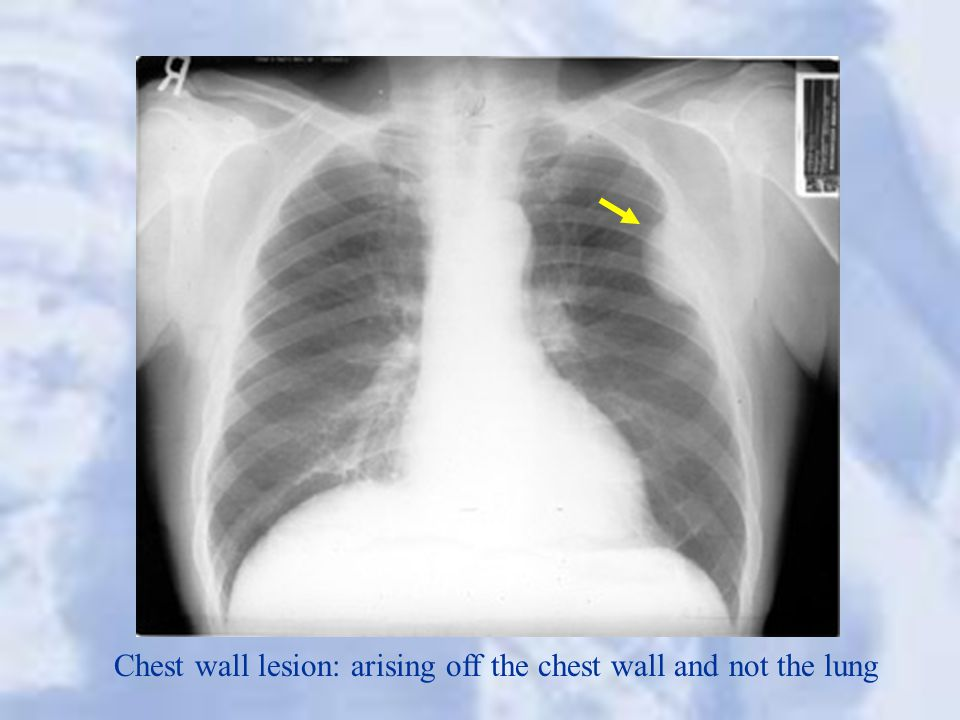 Chest wall lesion: arising off the chest wall and not the lung